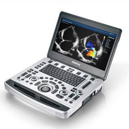 Ultrasound top Equipment
